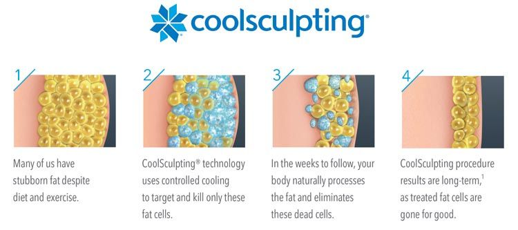 CoolSculpting_beauty_modnialmanah