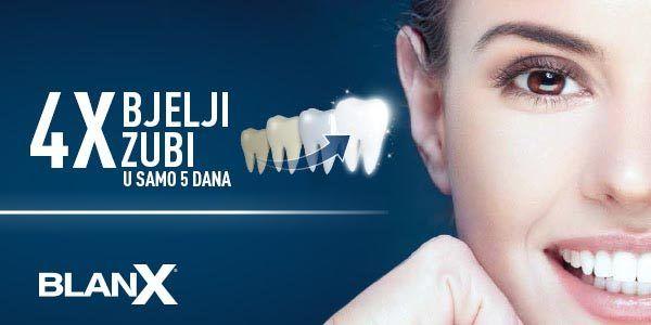 blanx-beauty-zubi-dm-modnialmanah